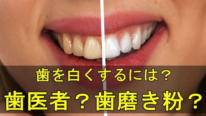歯の汚れは歯医者で落とす?歯磨き粉で落とす?二つのメリットデメリット