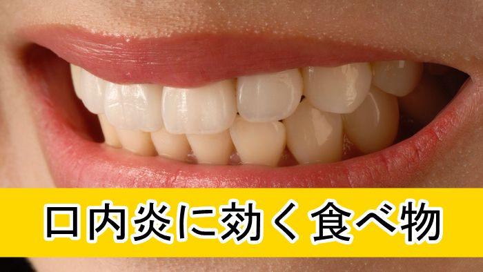 薬を使わず治療「口内炎に効く食べ物まとめ」口内炎になる原因・種類